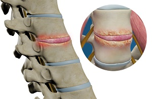 Lower Back Pain Surgery